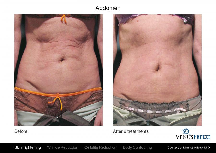 Tighten Skin And Reduce Cellulite Wrinkles And Circumferential Fat