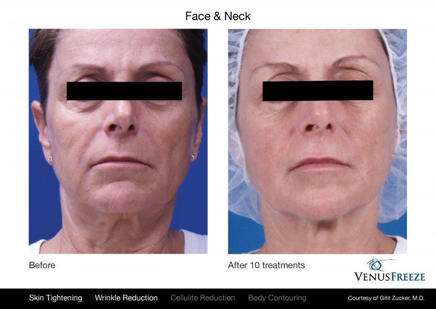 Tighten Skin And Reduce Cellulite Wrinkles And