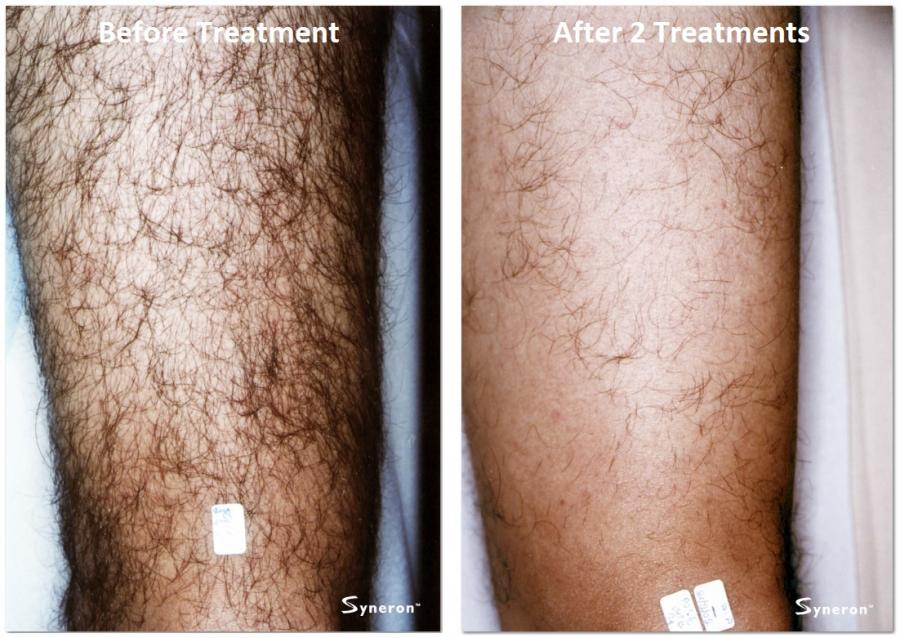 Laser Hair Removal Permanent Hair Removal Aesthetic Laser