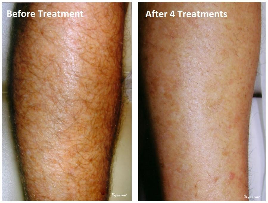 Laser hair removal permanent hair removal aesthetic laser before after gallery solutioingenieria Image collections