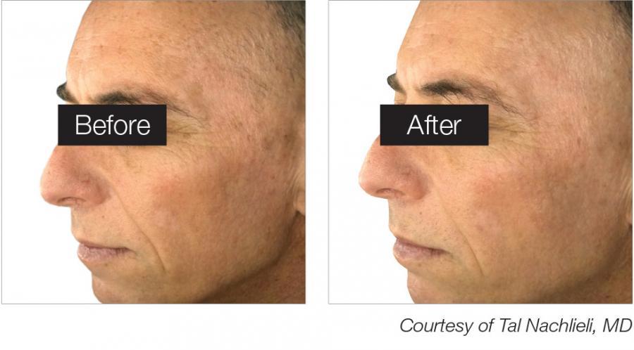 Color Correction Laser Treatment for Sun Damage, Age Spots