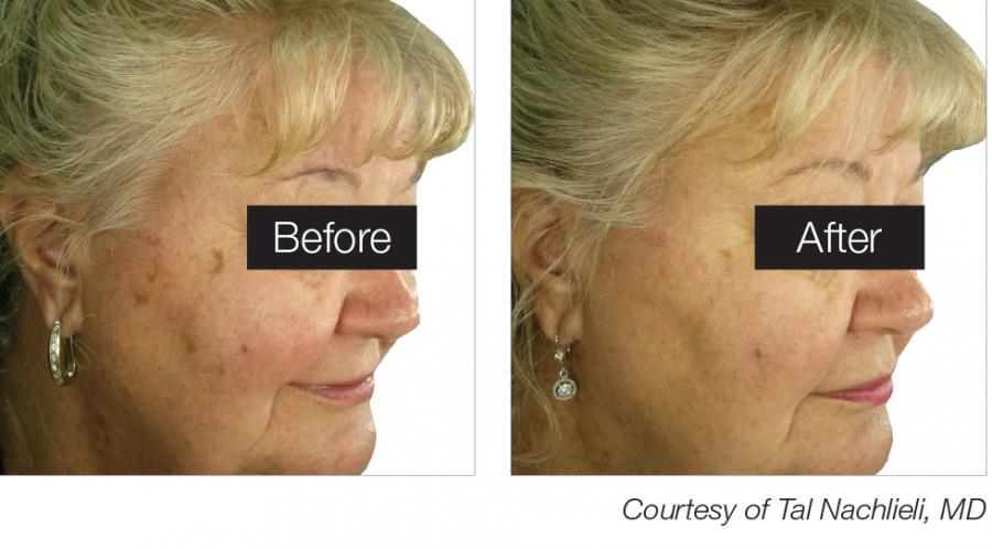 Color Correction Laser Treatment For Sun Damage Age Spots