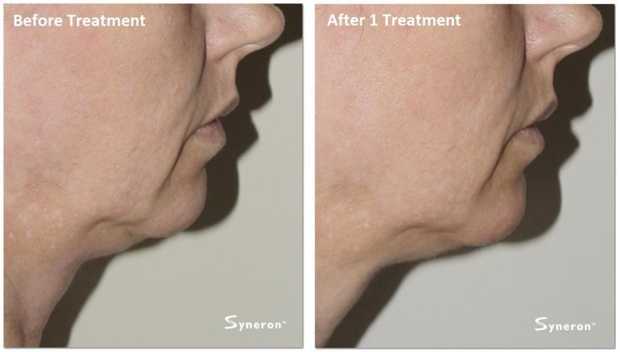 skin Treatment for sagging facial